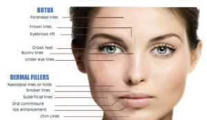 botox face and fillers