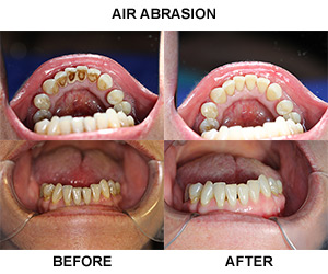Air Abrasion Polishing Mcmanus Amp Scott Dental Surgeries